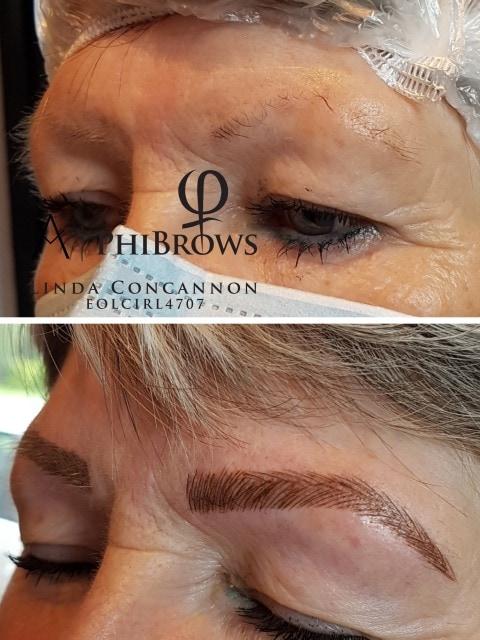 Eyebrow restoration Galway
